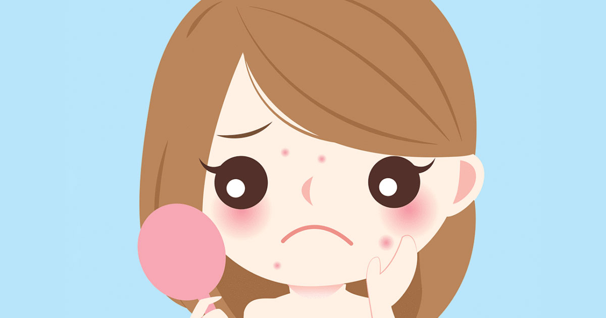 Tips on How To Deal With Acne During Pregnancy